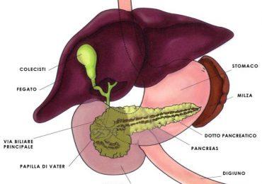 calcolosi biliare
